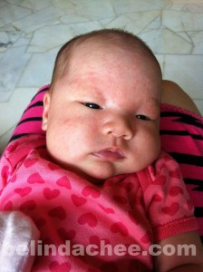 She had developed a rash on her entire face after turning 1 month old... =`(