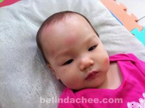 My poor little bruised baby....:(