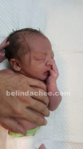 Red line down the right of his face after birth.